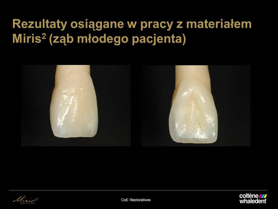 Rezultaty osiągane w pracy z materiałem Miris2 (ząb młodego pacjenta)