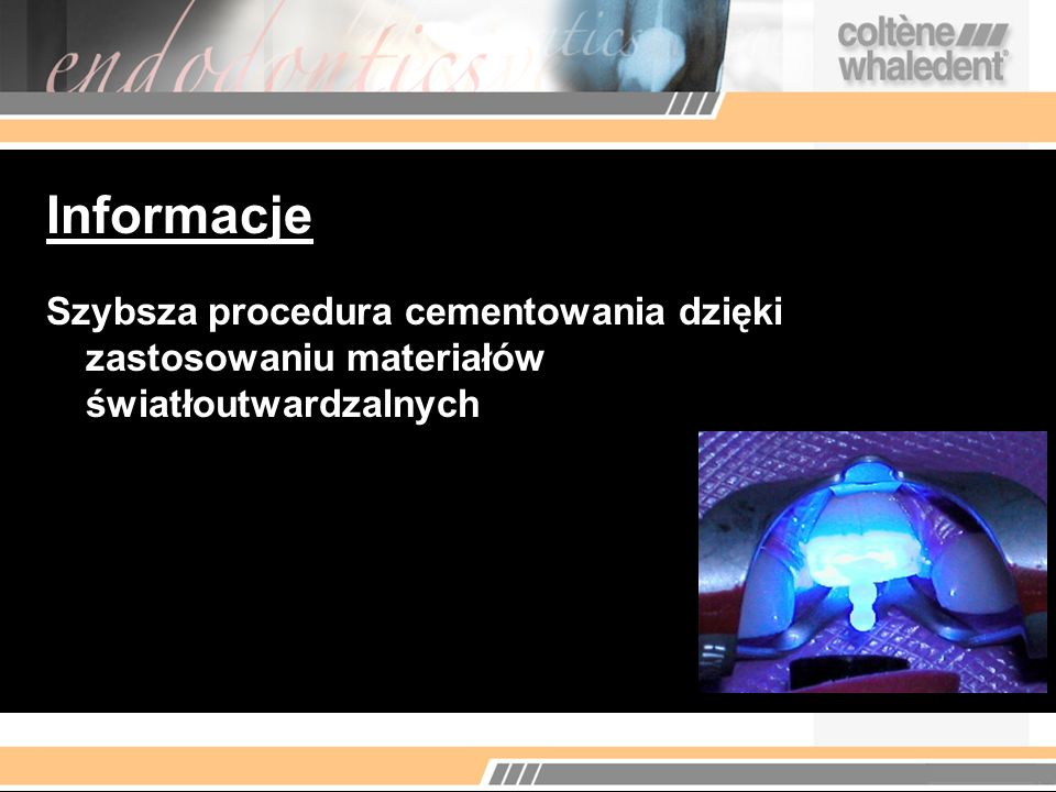 Informacje Szybsza procedura cementowania dzięki zastosowaniu materiałów światłoutwardzalnych Incl.