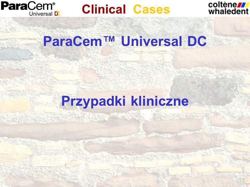 ParaCem™ Universal DC Przypadki kliniczne