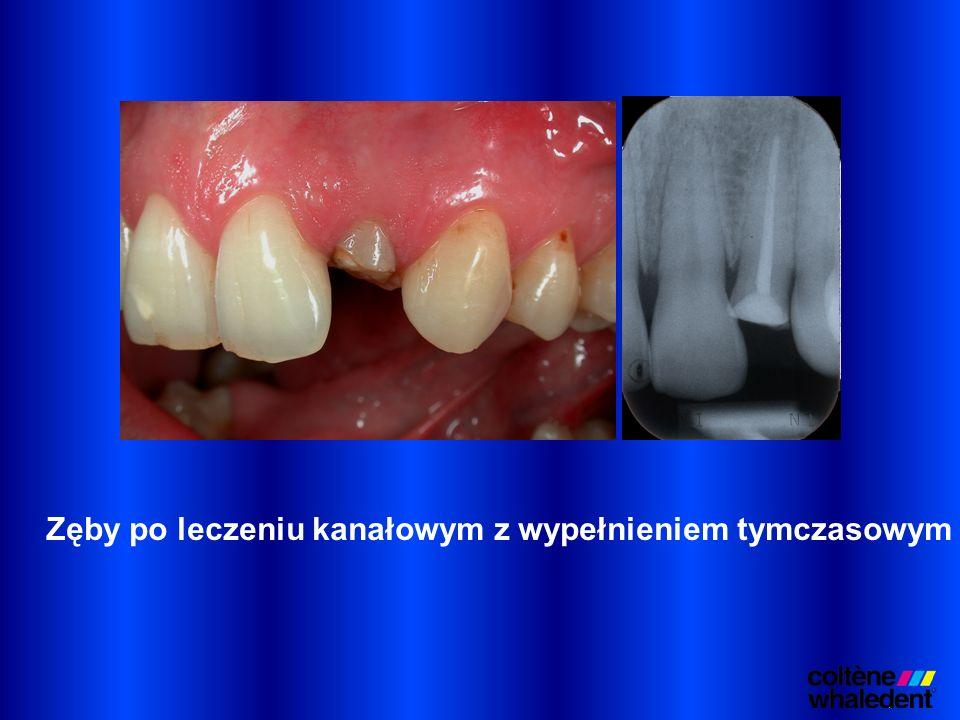 Zęby po leczeniu kanałowym z wypełnieniem tymczasowym