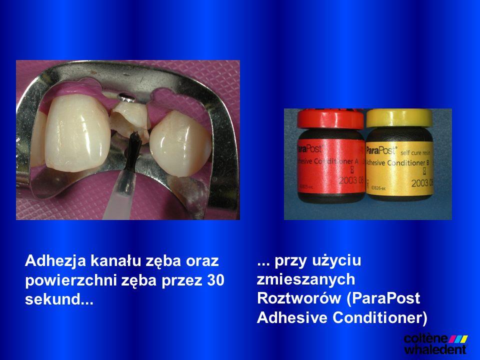 ... przy użyciu zmieszanych Roztworów (ParaPost Adhesive Conditioner)