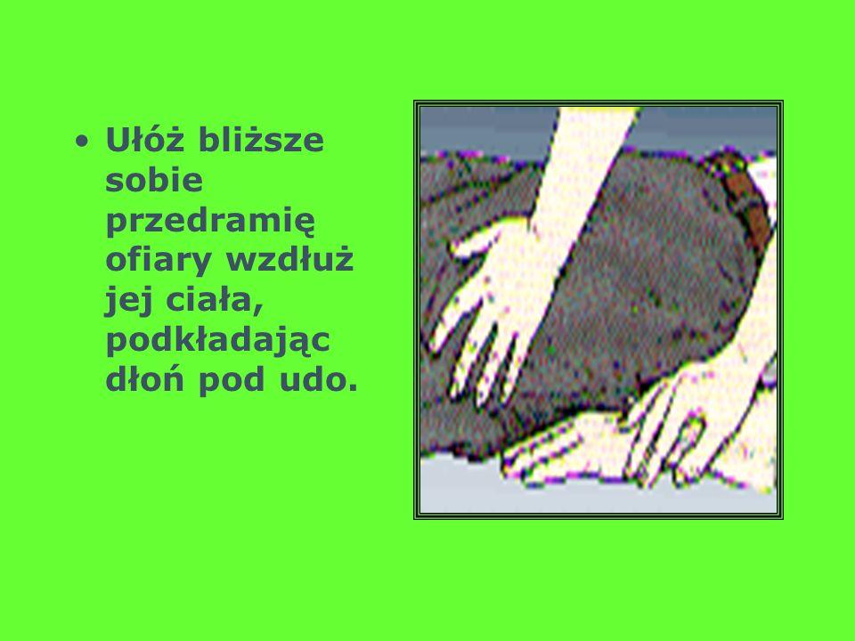 Ułóż bliższe sobie przedramię ofiary wzdłuż jej ciała, podkładając dłoń pod udo.