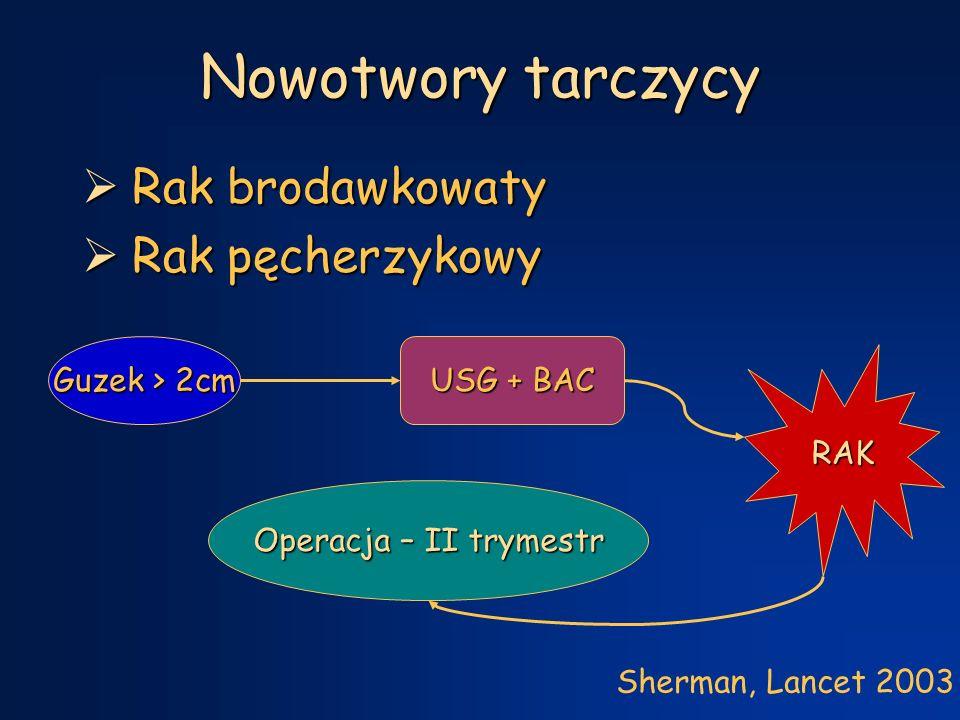 Nowotwory tarczycy Rak brodawkowaty Rak pęcherzykowy Guzek > 2cm