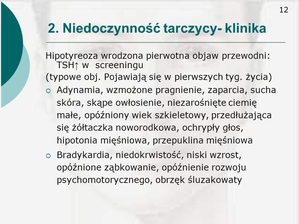 2. Niedoczynność tarczycy- klinika