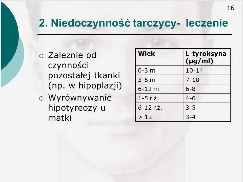 2. Niedoczynność tarczycy- leczenie