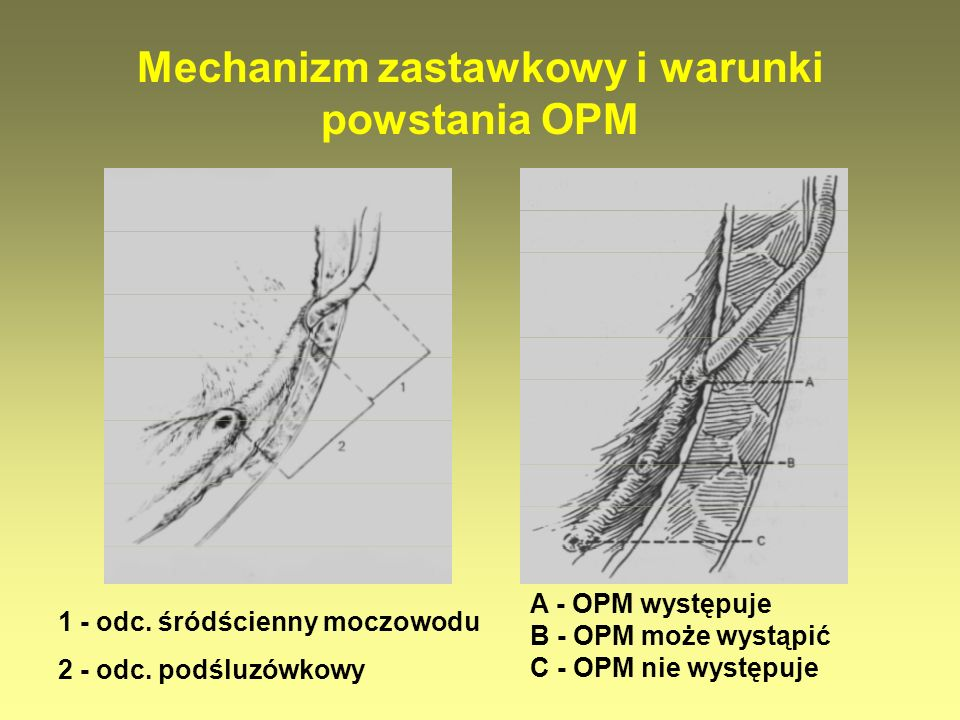 Mechanizm zastawkowy i warunki powstania OPM