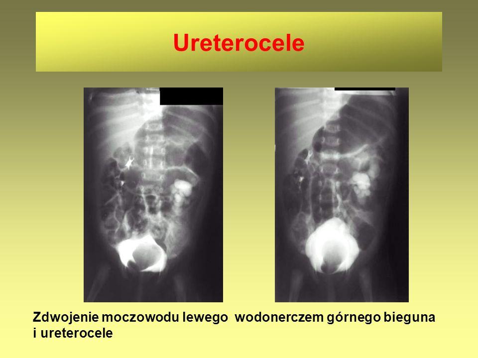 Ureterocele Zdwojenie moczowodu lewego wodonerczem górnego bieguna i ureterocele.