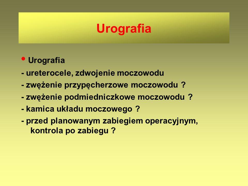Urografia • Urografia - ureterocele, zdwojenie moczowodu