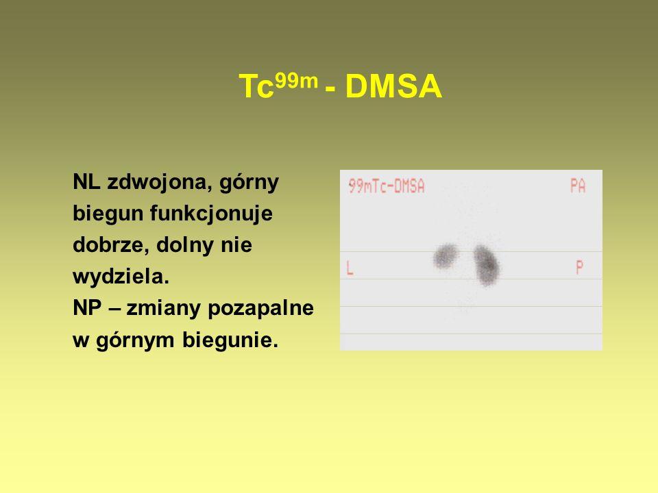 Tc99m - DMSA NL zdwojona, górny biegun funkcjonuje dobrze, dolny nie