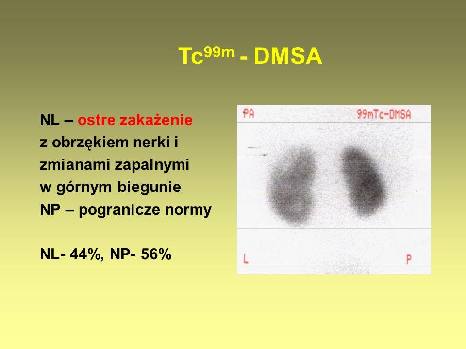 Tc99m - DMSA NL – ostre zakażenie z obrzękiem nerki i