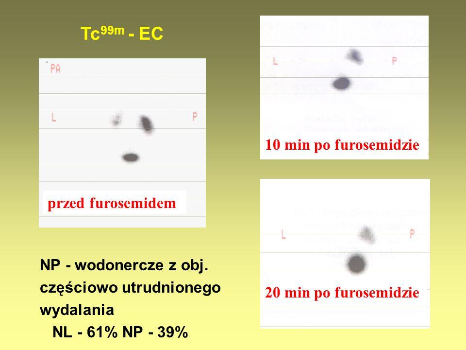 Tc99m - EC 10 min po furosemidzie przed furosemidem