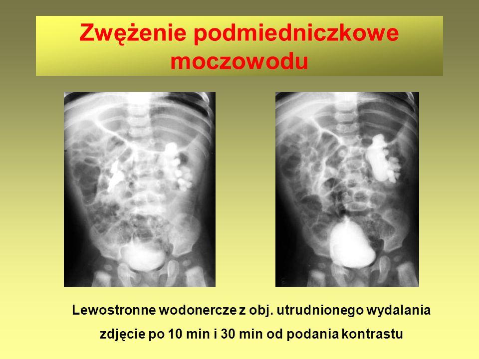 Zwężenie podmiedniczkowe moczowodu