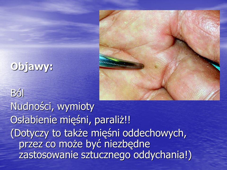 Objawy: Ból. Nudności, wymioty. Osłabienie mięśni, paraliż!!