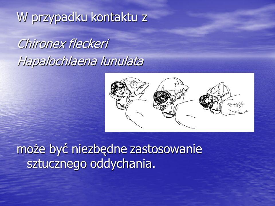 W przypadku kontaktu z Chironex fleckeri. Hapalochlaena lunulata.