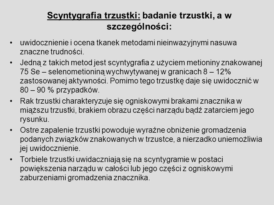 Scyntygrafia trzustki: badanie trzustki, a w szczególności: