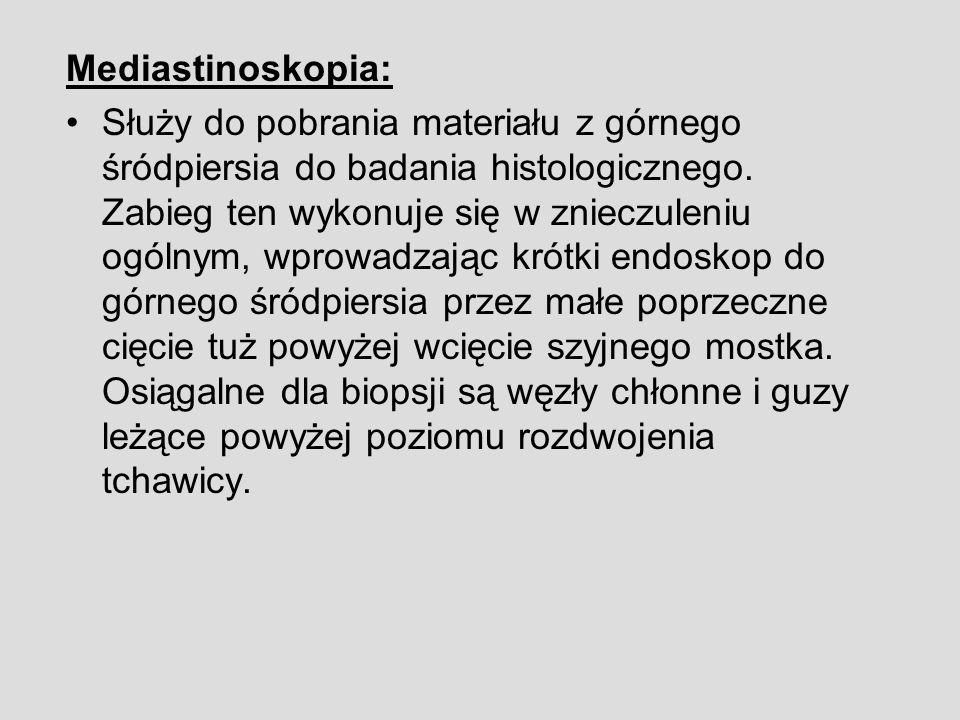 Mediastinoskopia: