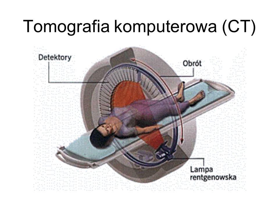 Tomografia komputerowa (CT)