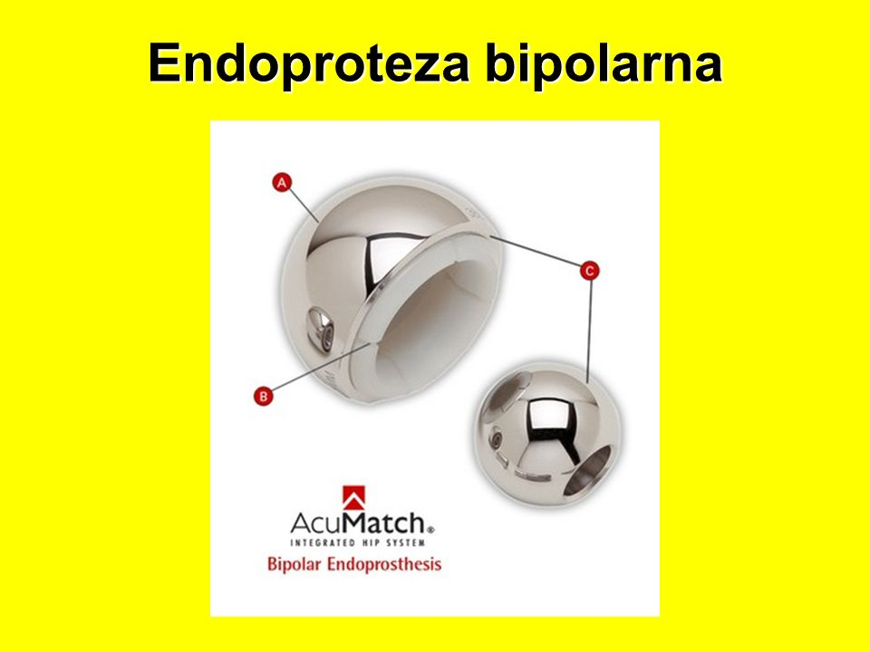 Endoproteza bipolarna