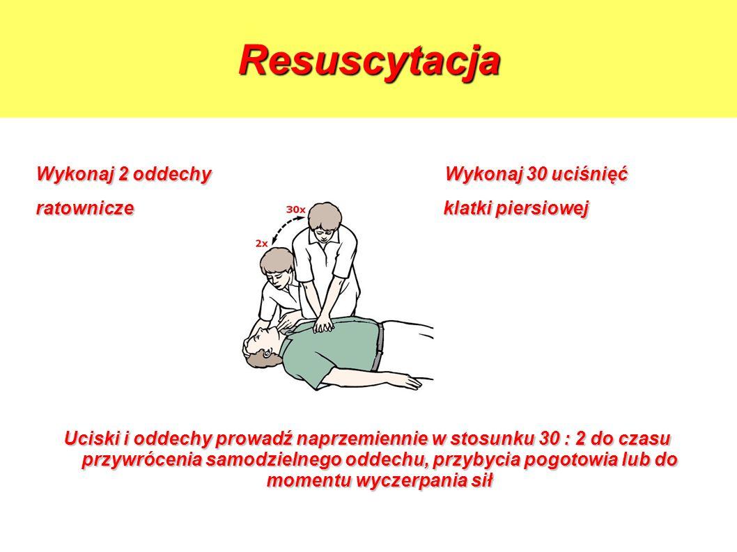 Resuscytacja Wykonaj 2 oddechy Wykonaj 30 uciśnięć