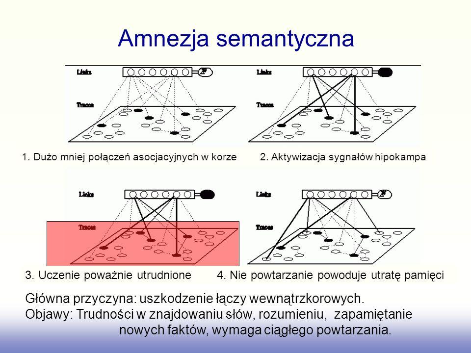 Amnezja semantyczna 1. Dużo mniej połączeń asocjacyjnych w korze 2. Aktywizacja sygnałów hipokampa.