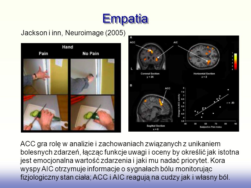 Empatia Jackson i inn, Neuroimage (2005)