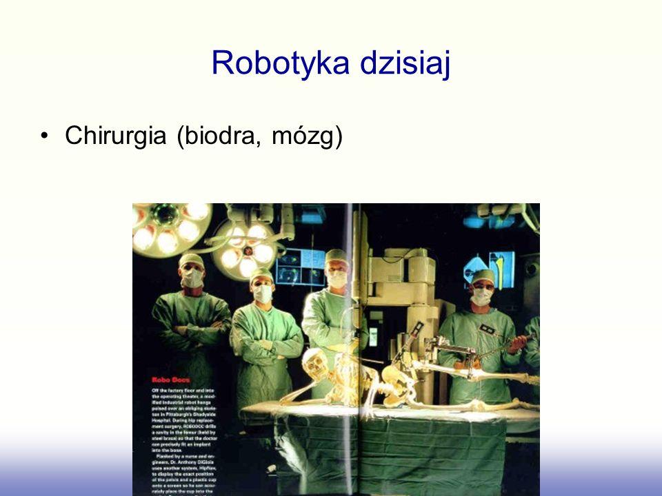 Robotyka dzisiaj Chirurgia (biodra, mózg)