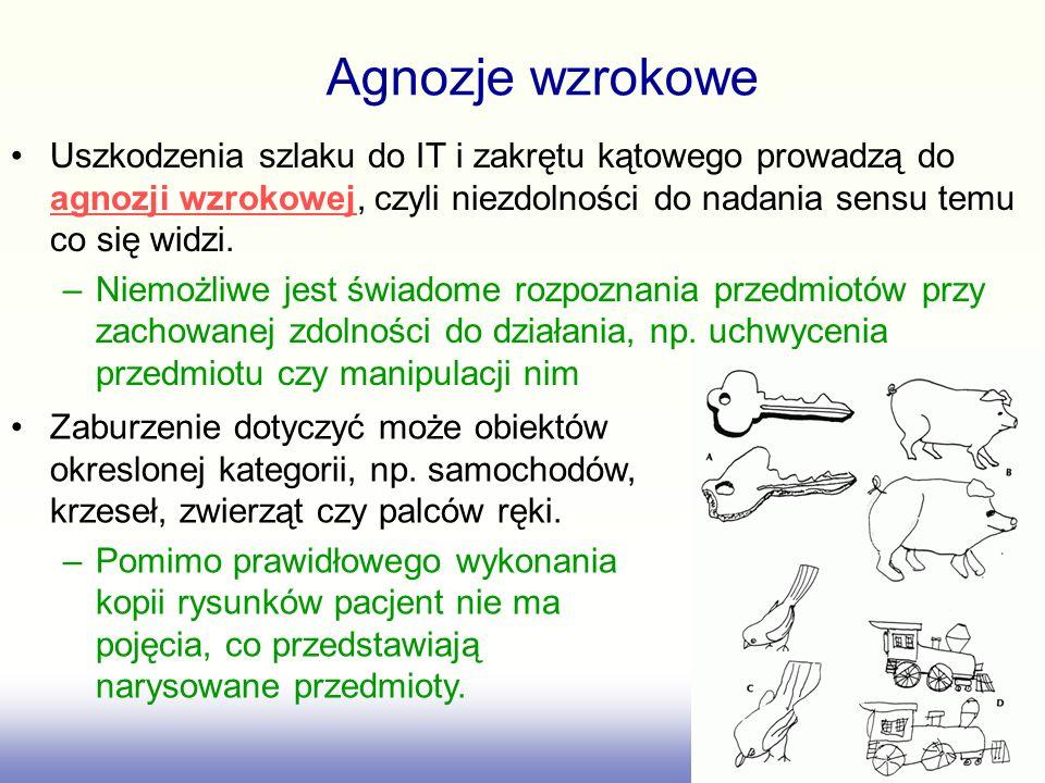Agnozje wzrokowe Uszkodzenia szlaku do IT i zakrętu kątowego prowadzą do agnozji wzrokowej, czyli niezdolności do nadania sensu temu co się widzi.
