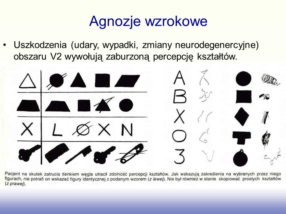 Agnozje wzrokowe Uszkodzenia (udary, wypadki, zmiany neurodegenercyjne) obszaru V2 wywołują zaburzoną percepcję kształtów.