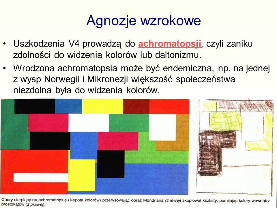 Agnozje wzrokowe Uszkodzenia V4 prowadzą do achromatopsji, czyli zaniku zdolności do widzenia kolorów lub daltonizmu.