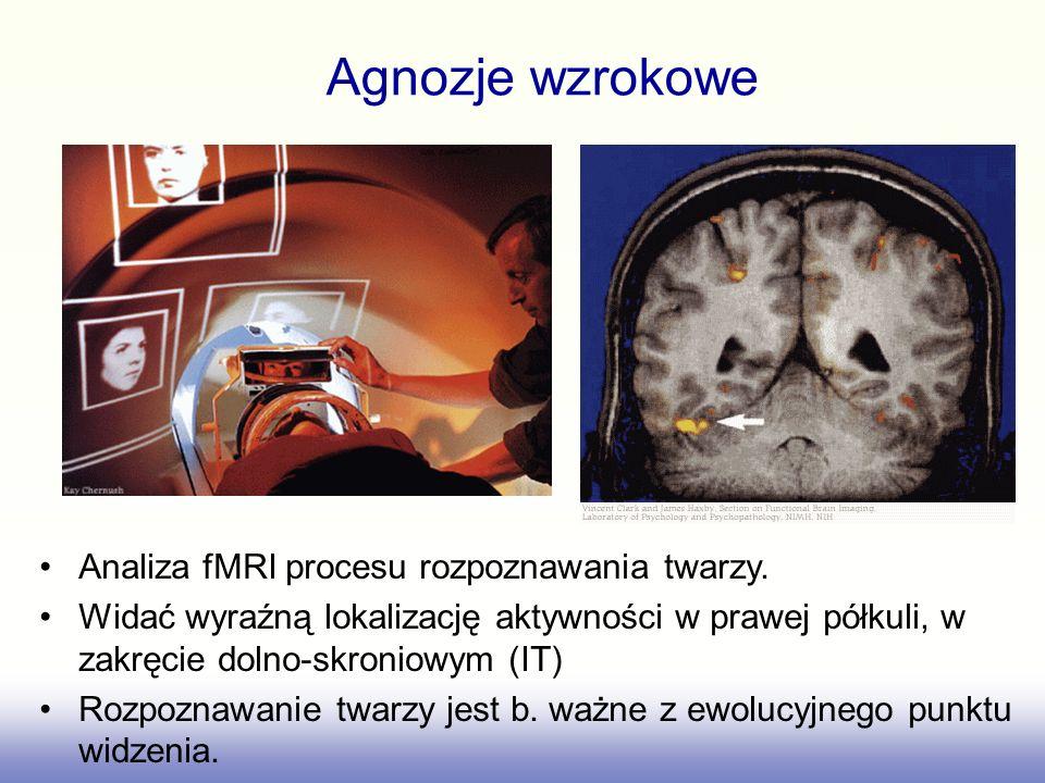 Agnozje wzrokowe Analiza fMRI procesu rozpoznawania twarzy.
