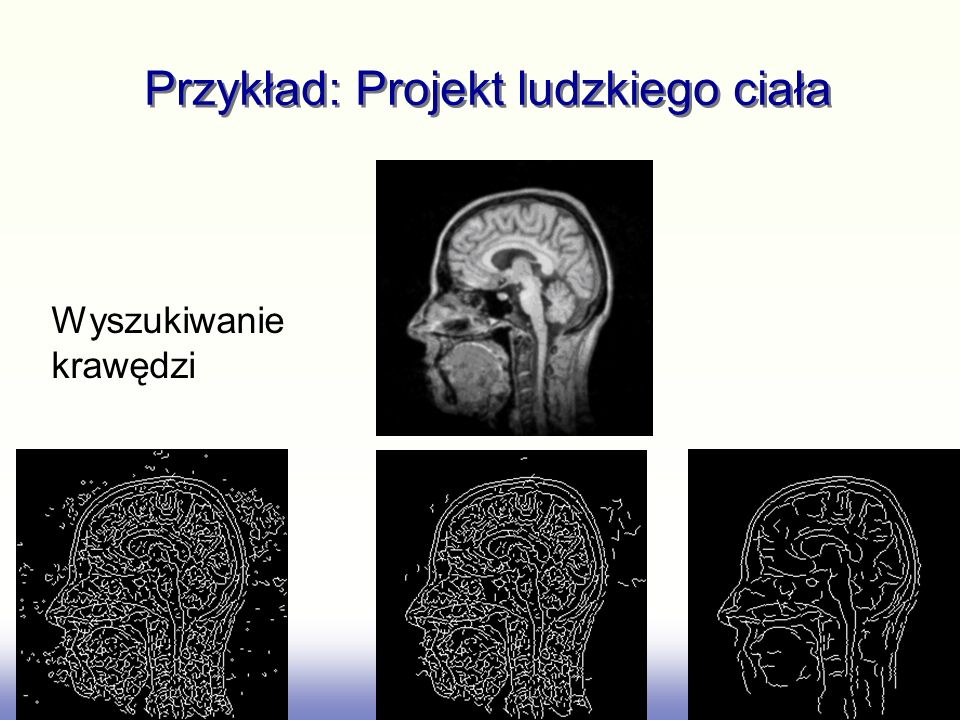 Przykład: Projekt ludzkiego ciała