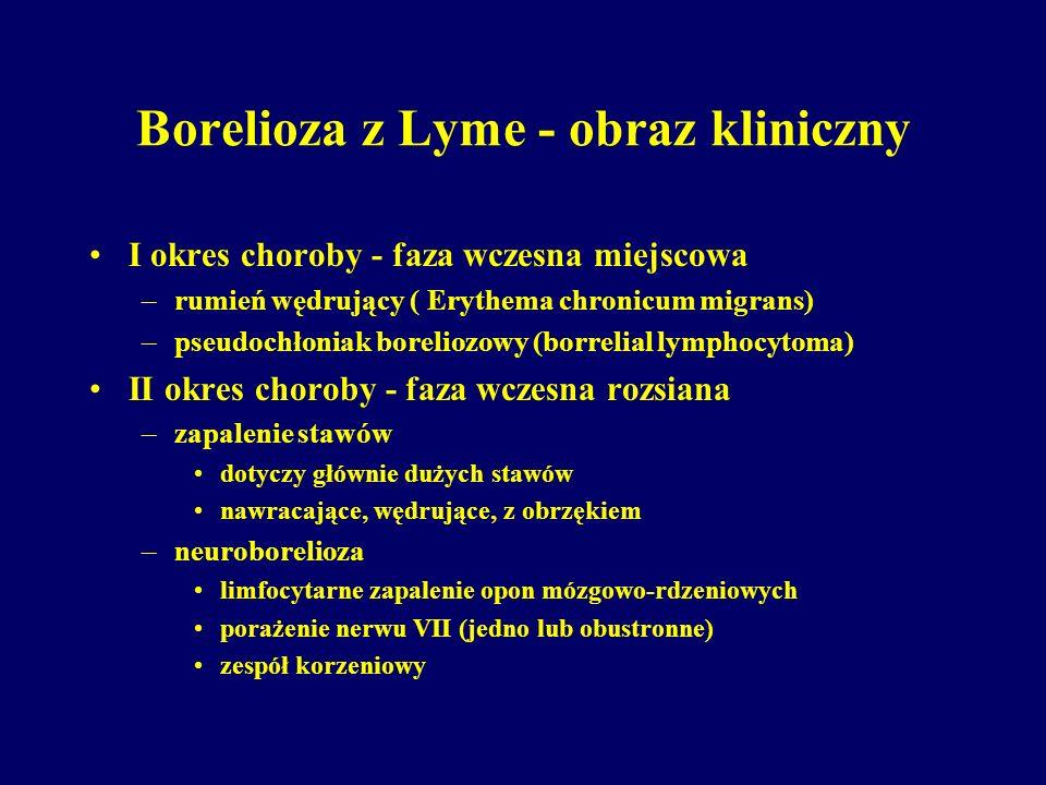 Borelioza z Lyme - obraz kliniczny