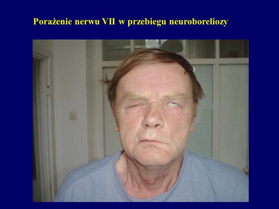 Porażenie nerwu VII w przebiegu neuroboreliozy