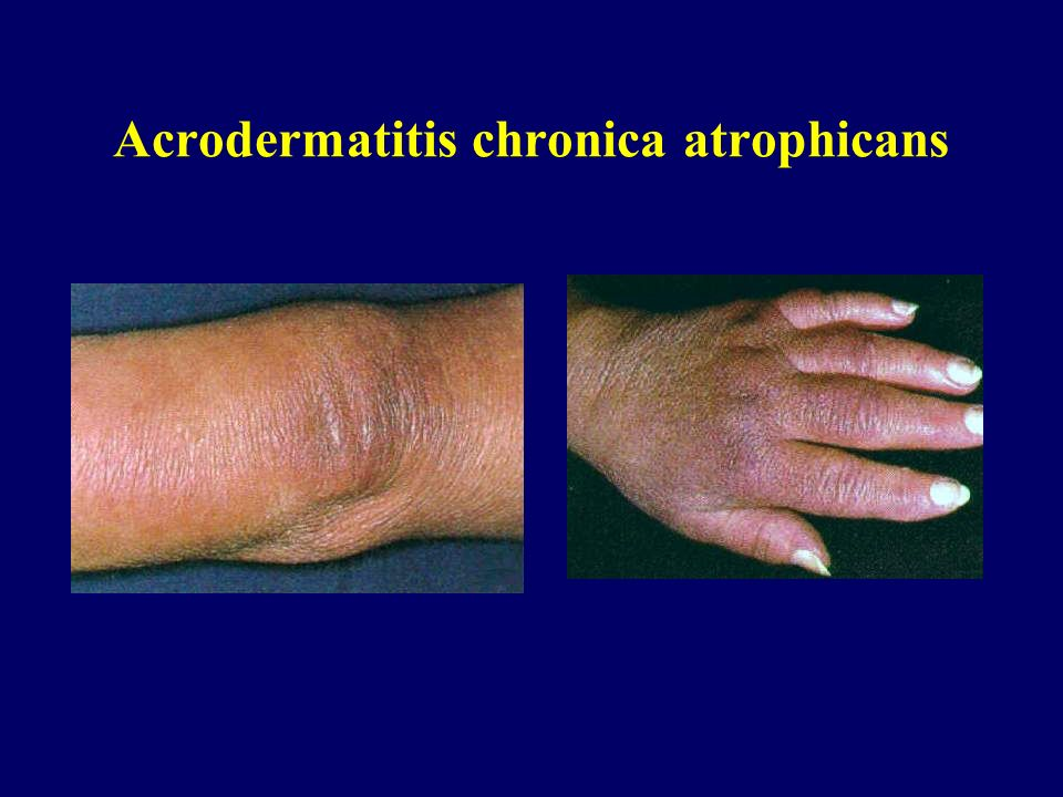 Acrodermatitis chronica atrophicans