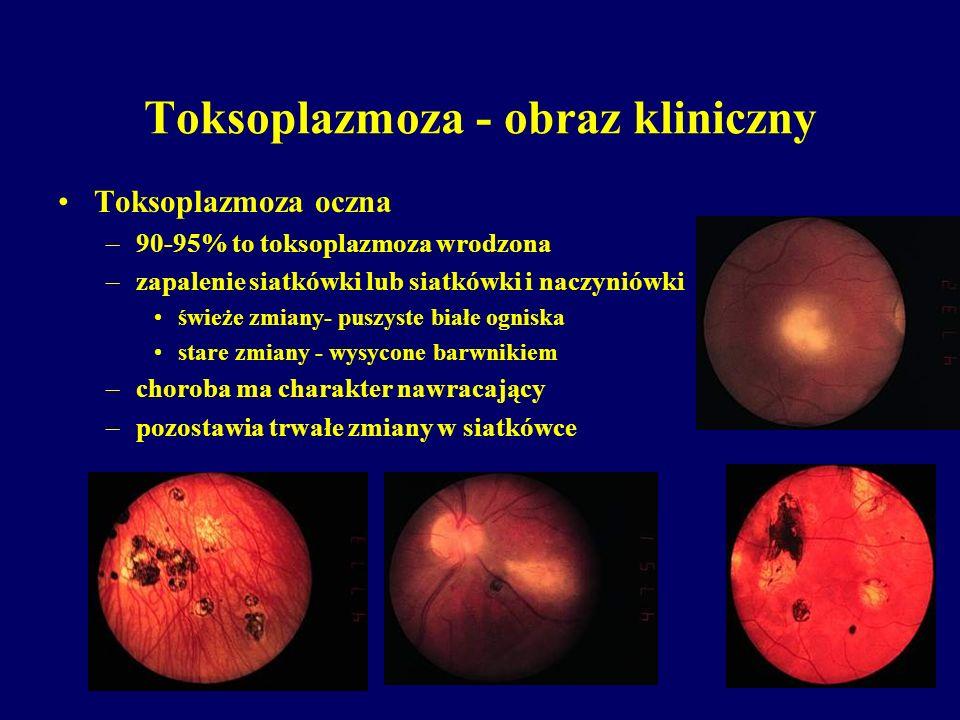 Toksoplazmoza - obraz kliniczny