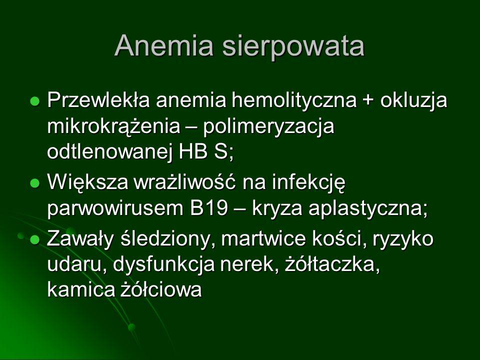 Anemia sierpowata Przewlekła anemia hemolityczna + okluzja mikrokrążenia – polimeryzacja odtlenowanej HB S;