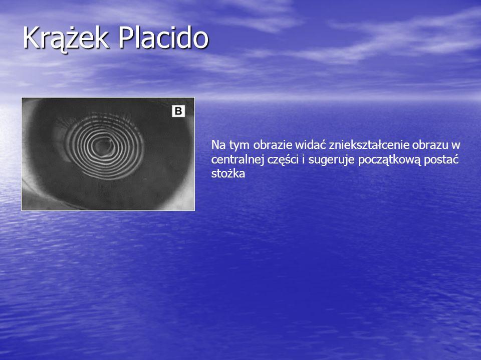 Krążek PlacidoNa tym obrazie widać zniekształcenie obrazu w centralnej części i sugeruje początkową postać stożka.