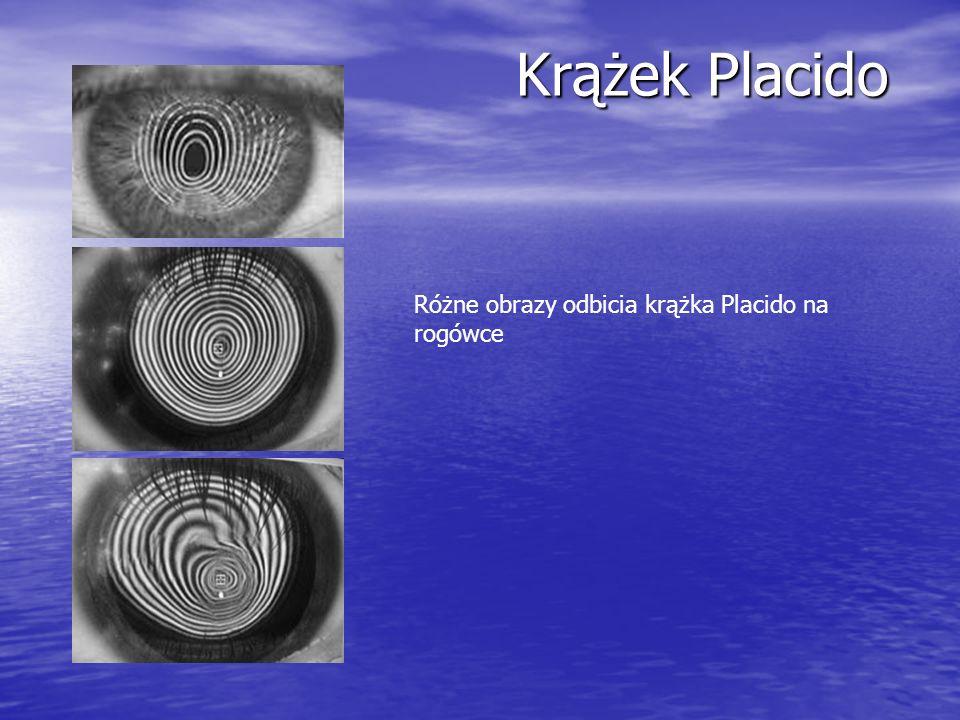 Krążek Placido Różne obrazy odbicia krążka Placido na rogówce