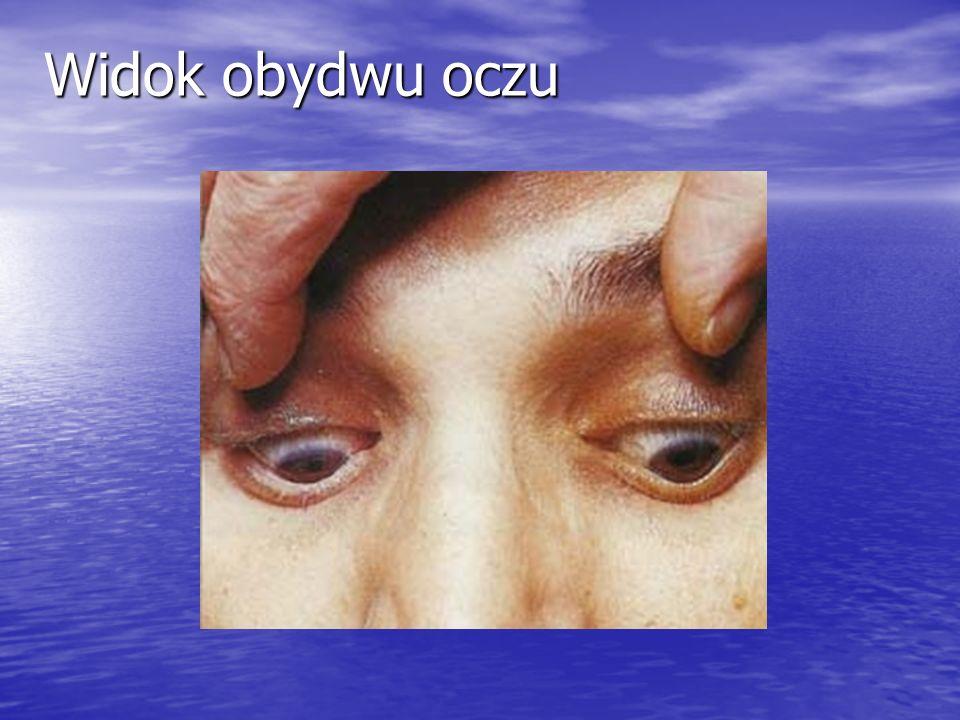 Widok obydwu oczu