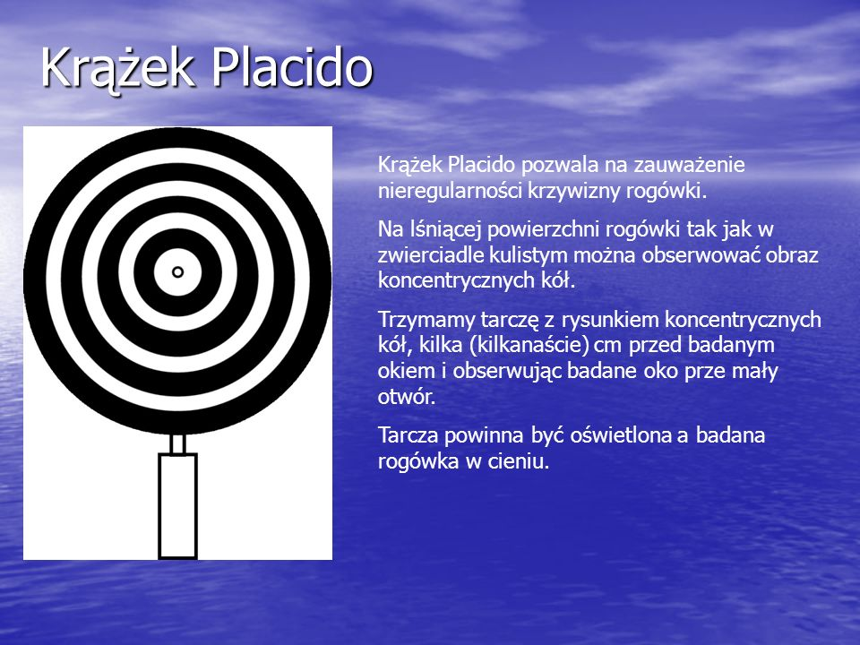 Krążek PlacidoKrążek Placido pozwala na zauważenie nieregularności krzywizny rogówki.