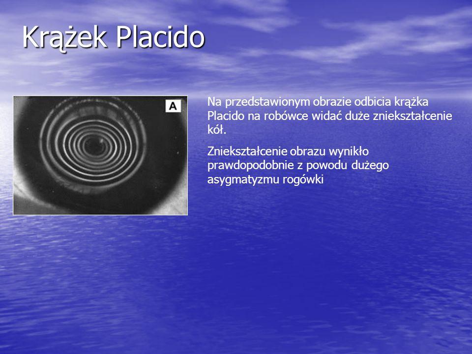 Krążek PlacidoNa przedstawionym obrazie odbicia krążka Placido na robówce widać duże zniekształcenie kół.