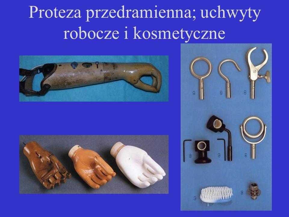 Proteza przedramienna; uchwyty robocze i kosmetyczne