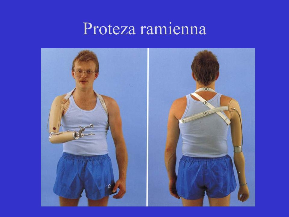 Proteza ramienna