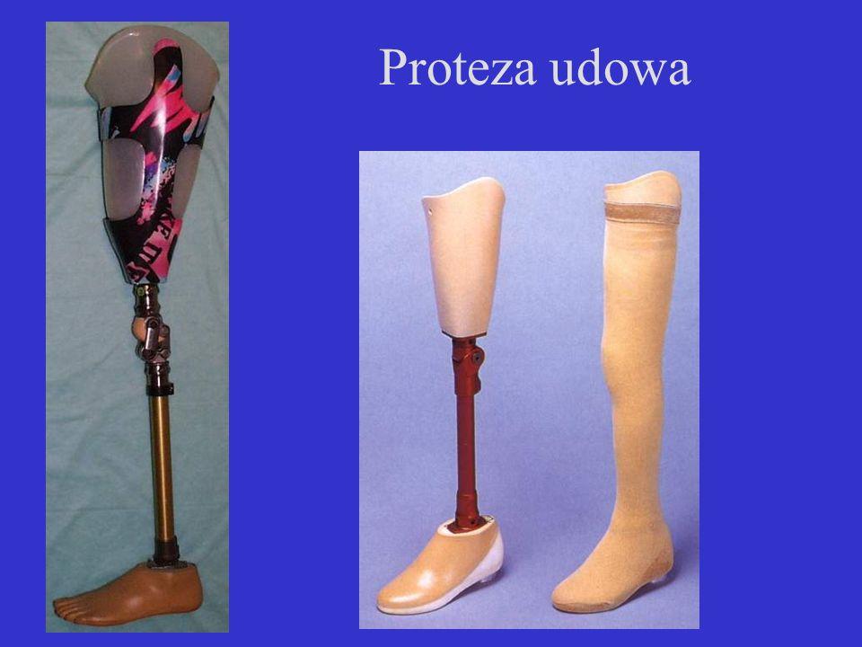 Proteza udowa
