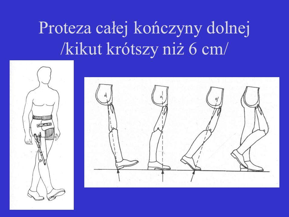 Proteza całej kończyny dolnej /kikut krótszy niż 6 cm/