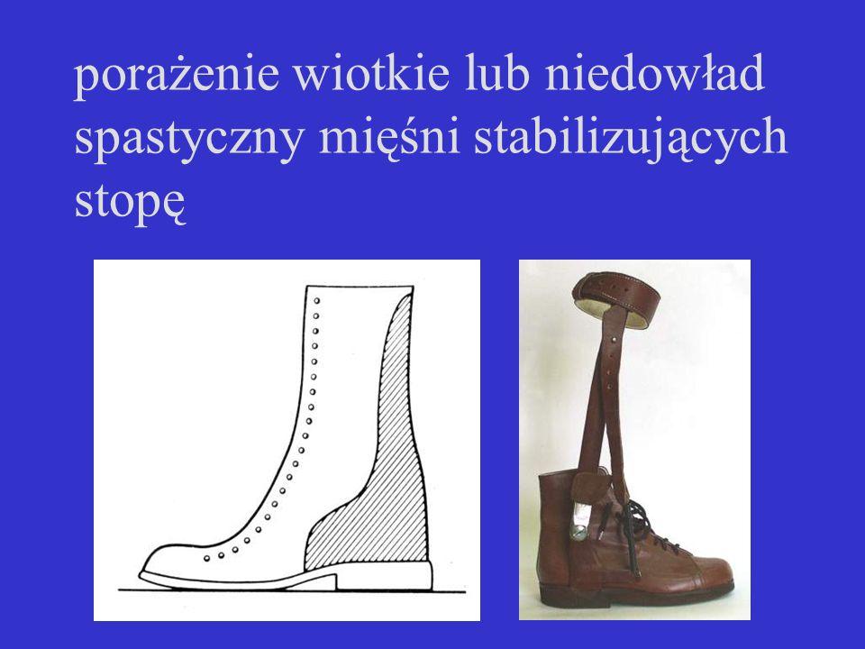 porażenie wiotkie lub niedowład spastyczny mięśni stabilizujących stopę
