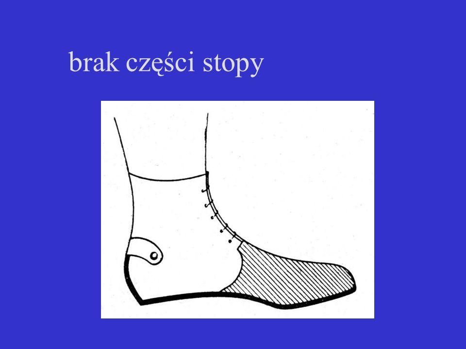 brak części stopy