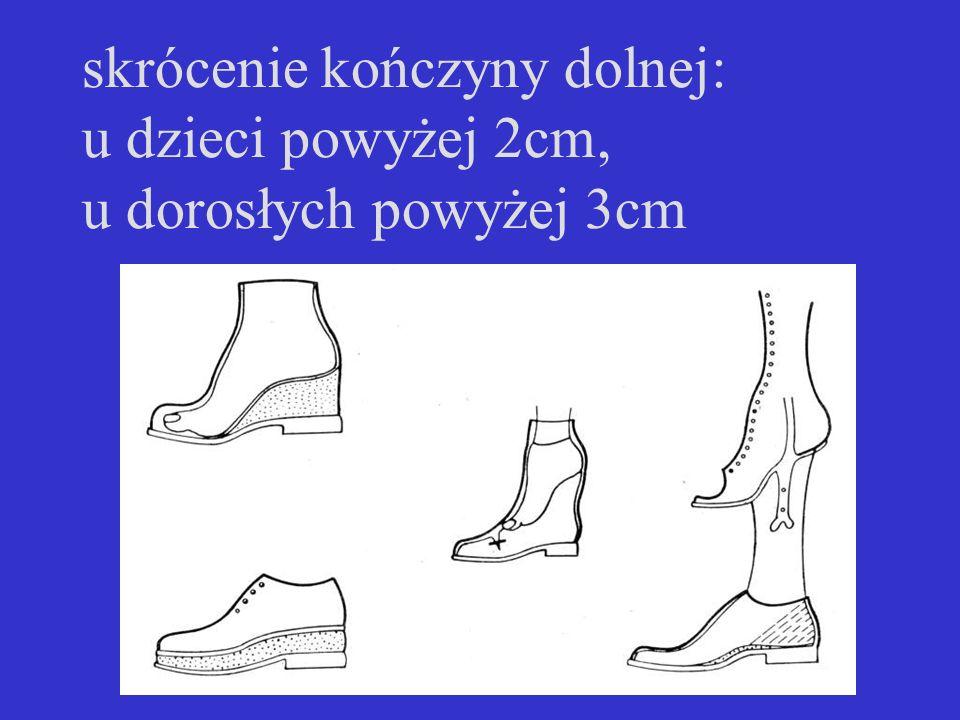 skrócenie kończyny dolnej: u dzieci powyżej 2cm, u dorosłych powyżej 3cm