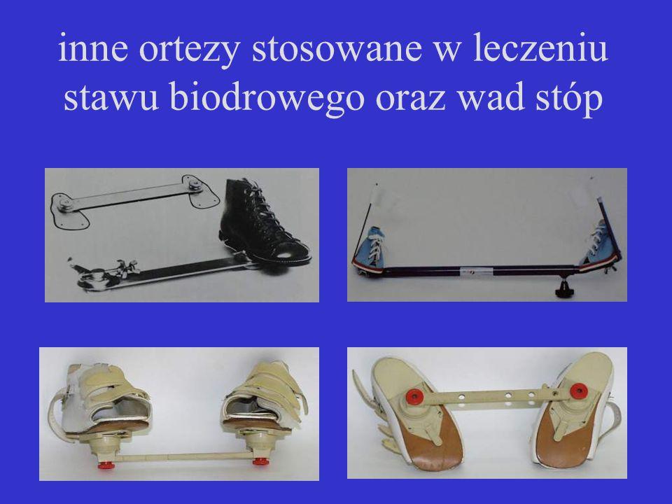 inne ortezy stosowane w leczeniu stawu biodrowego oraz wad stóp