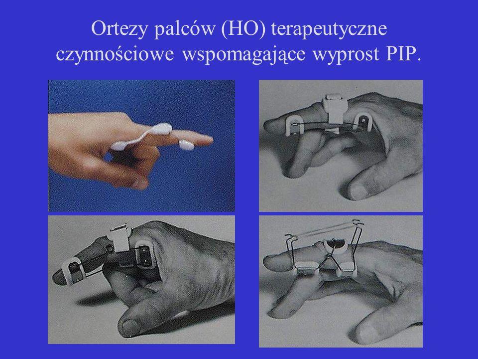 Ortezy palców (HO) terapeutyczne czynnościowe wspomagające wyprost PIP.